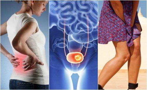 Infectiile urinare recurente ar putea fi un semn al cancerului de vezica urinara sau de rinichi
