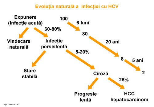 Totul despre cancerul la ficat in stadiul 4 - Stirile Kanal D