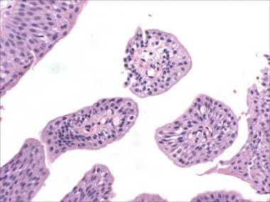 transitional papilloma bladder