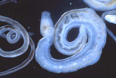 Schistosoma spp. Agent etiologic al schistosomiazei (bilharzioză) Boală tropicală frecventă