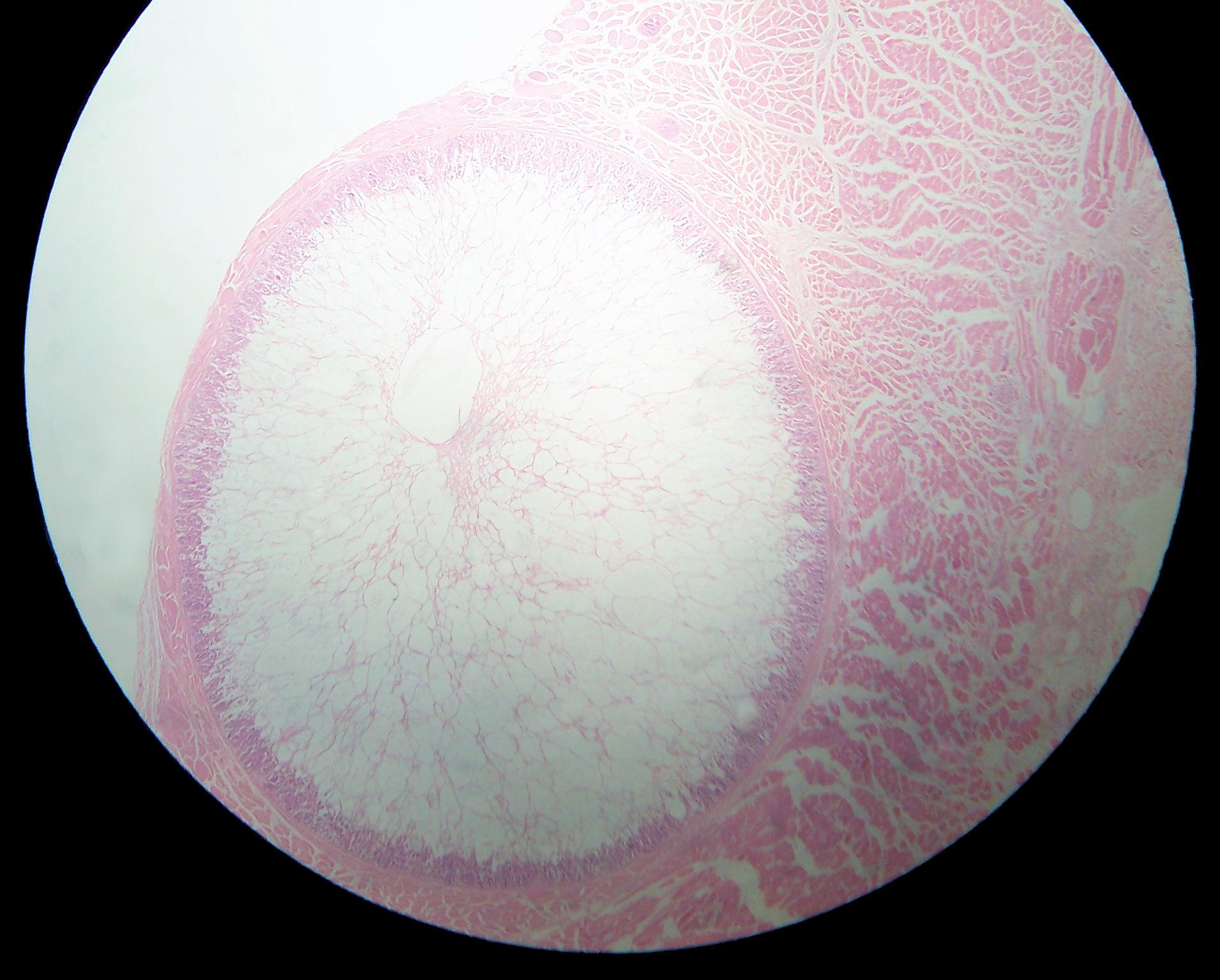 whats laryngeal papillomatosis parazitii quantic