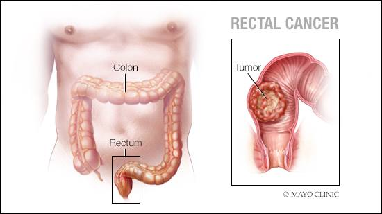 hpv y cancer de colon