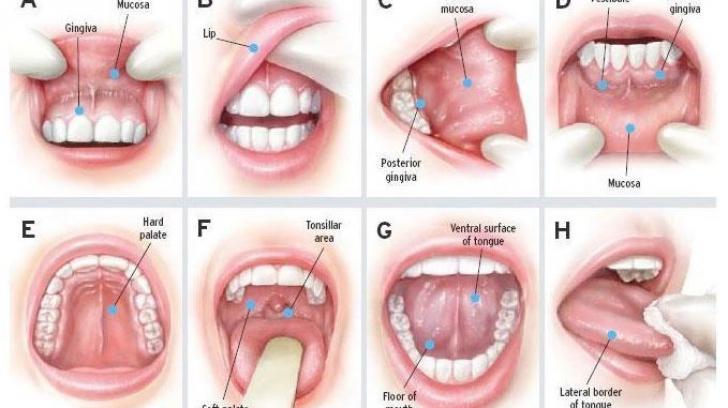 cancer bucal vindecare