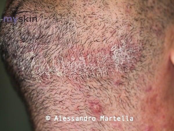 Dermatită. Simptome, cauze, tipuri și tratament
