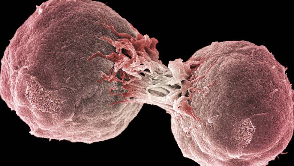 hpv cancer of the tongue hiv and blood cancer