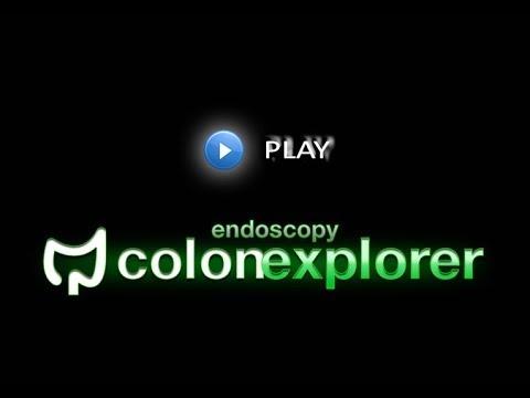 cancerul colon se vindeca