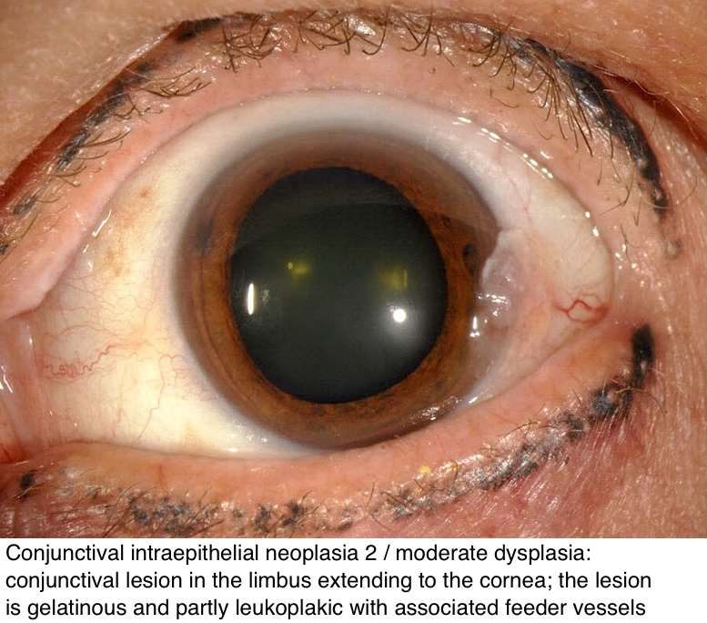 conjunctival papilloma pathology outlines