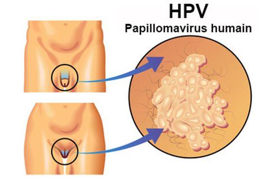 infection papillomavirus traitement benign cancer in lungs