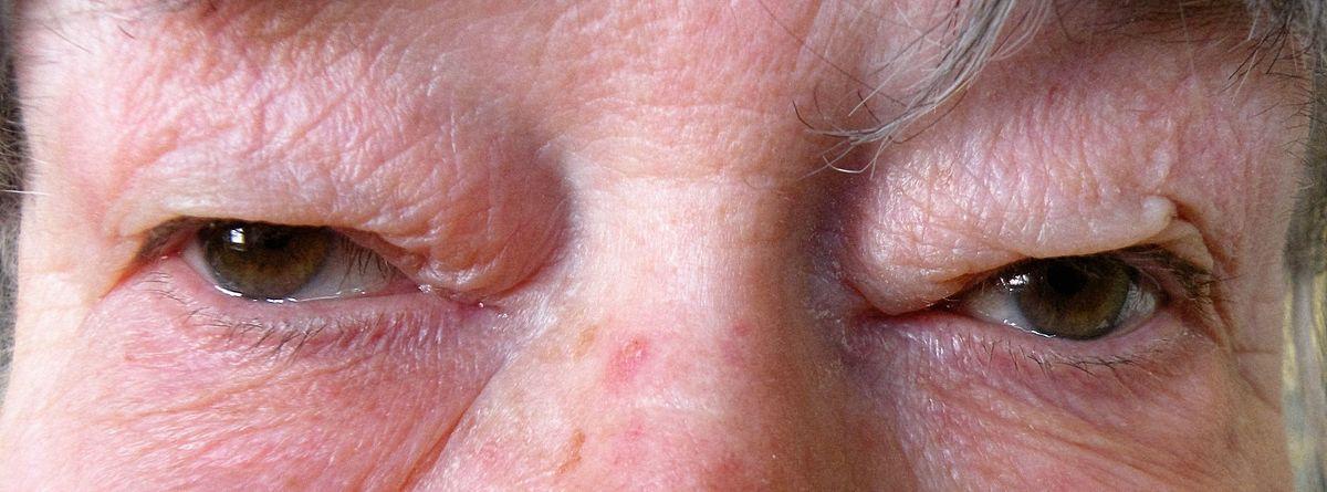 foot warts podiatrist or dermatologist hpv tedavisi erkekler