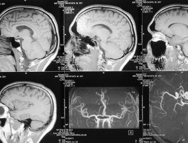 simptome cancer la creier