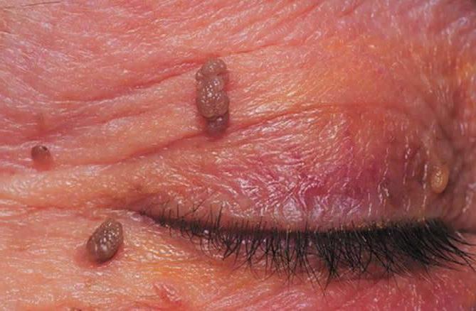 human papilloma virus kod muskaraca