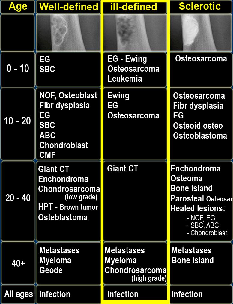 sarcoma cancer meaning cancer de colon rectal