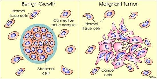 cancer and benign tumors cancer de vezica la femei