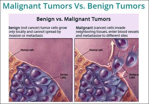 cancer and benign tumors