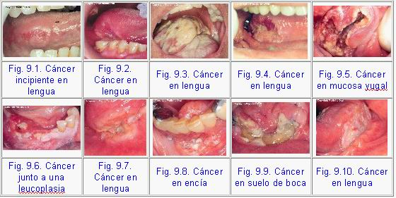 cancer de garganta causada por hpv