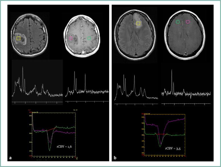 cancer cerebral grau 2