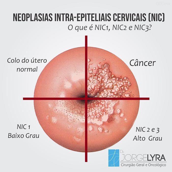 cancer cervical nic 2