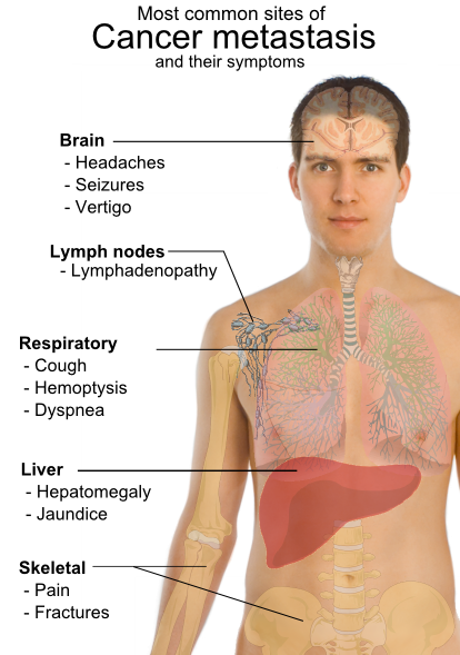cancer inside tip of nose viermi oxiuri tratament
