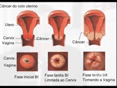 cancer de prostata tratamiento hormonal