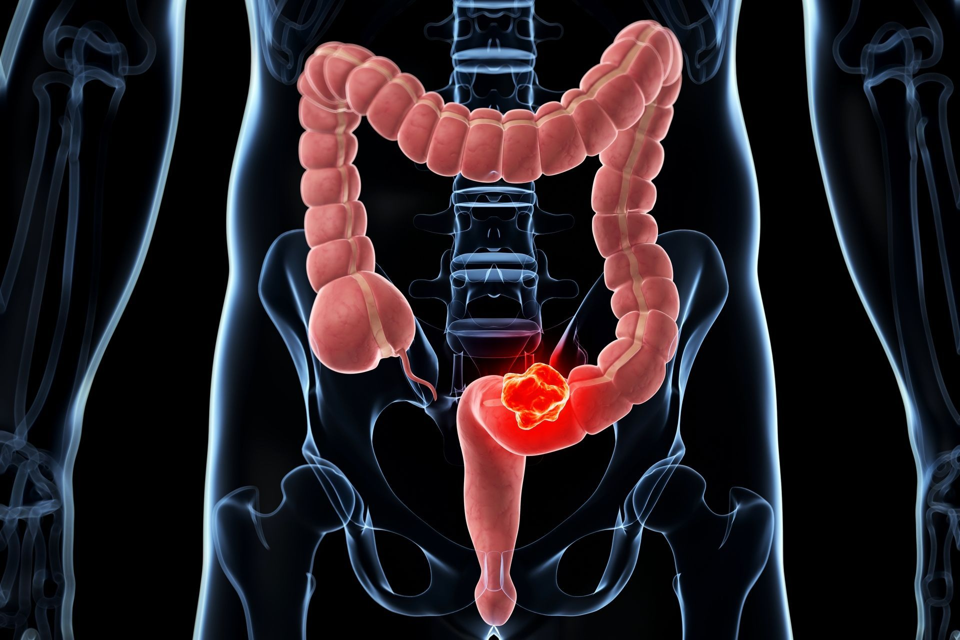 cancer colorectal homme symptome