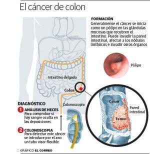 cancer de colon heces con sangre