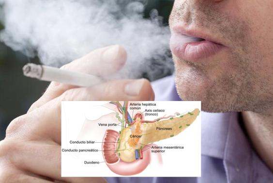 cancer de pancreas muerte