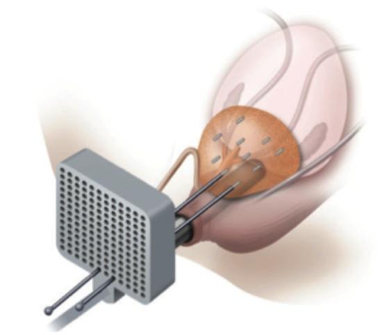 cancer de prostata braquiterapia hpv ad alto rischio 16 18