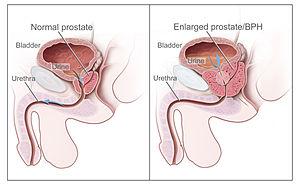 Como é o tratamento da prostatite e do adenoma da próstata