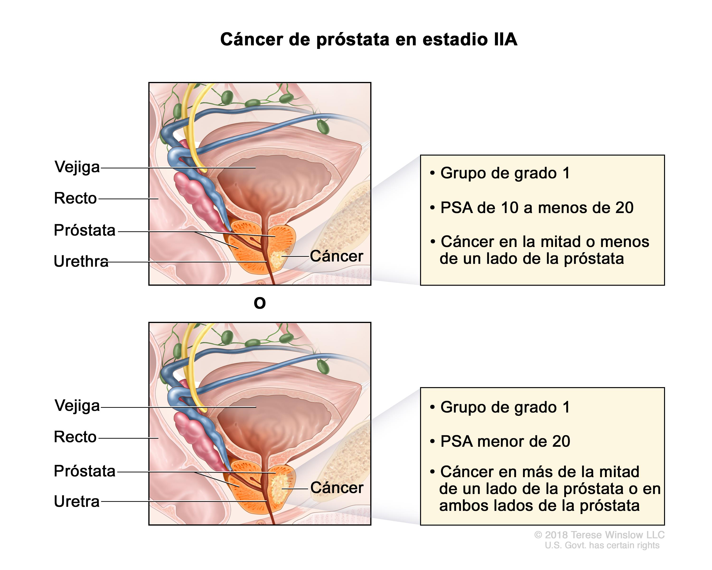 cancer de prostata definicion warts on hands will not go away