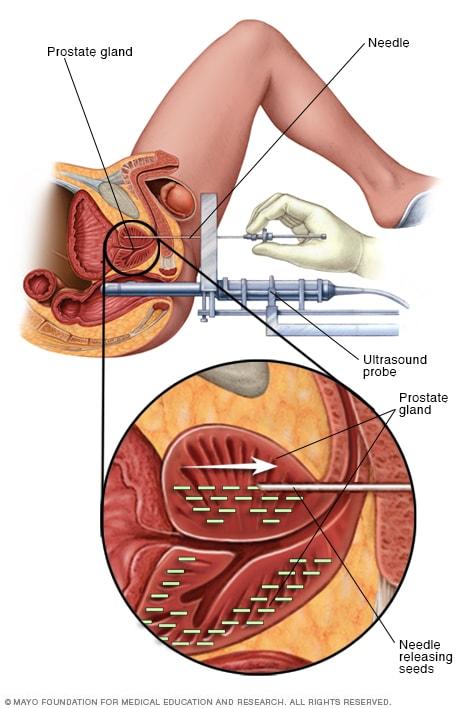 Fizioterapie dupa indepartarea cancerului de prostata