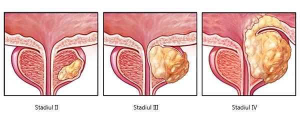 breast papilloma and breastfeeding papiloma genital masculino tratamiento