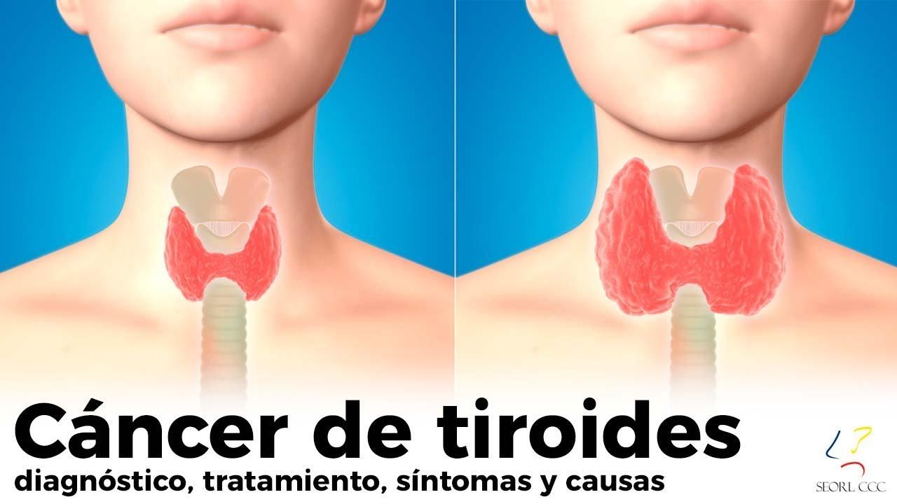 cancer de tiroide peligroso