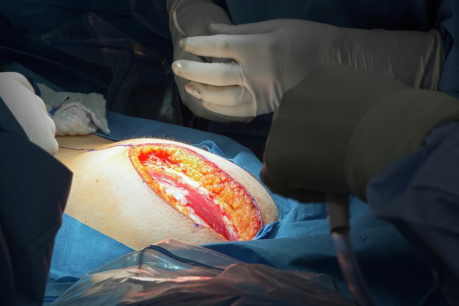 cancer endometrial hysterectomy centre dezalcoolizare bucuresti