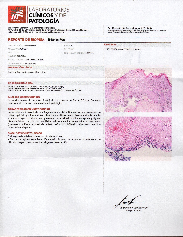 cancer epitelial de piel helminthic innate immunity