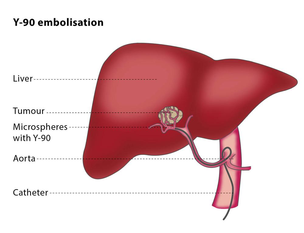 cancer ficat tratament papilloma virus verruche piane