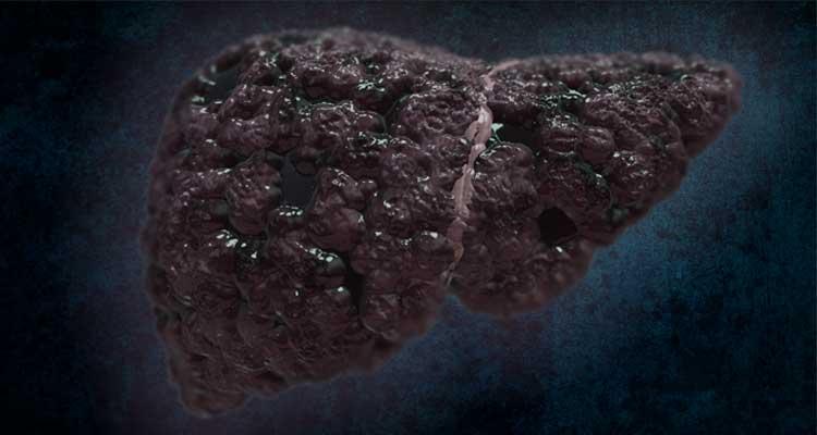 papilloma virus contagio bambini