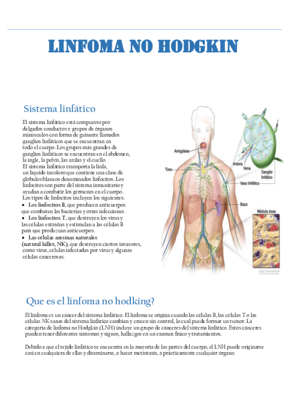 cancer hodgkin sistema linfatico papilloma medical define
