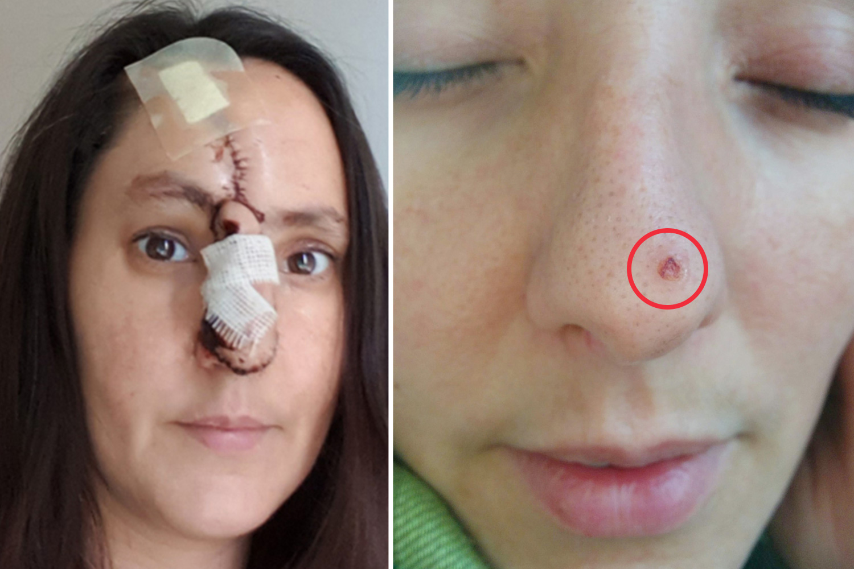 Reconstrucţia defectelor faciale post-rezecţie tumorală cu lambouri locale