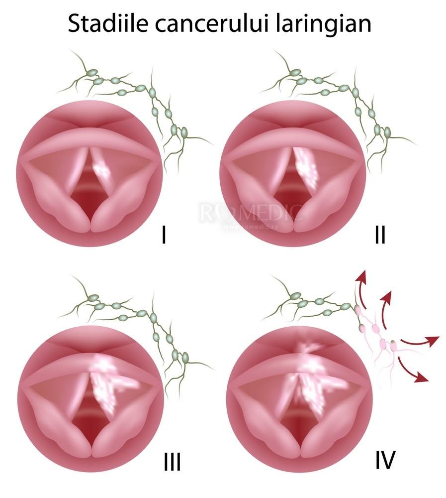 cancer pancreas localmente avanzado cancerul uterin se poate trata
