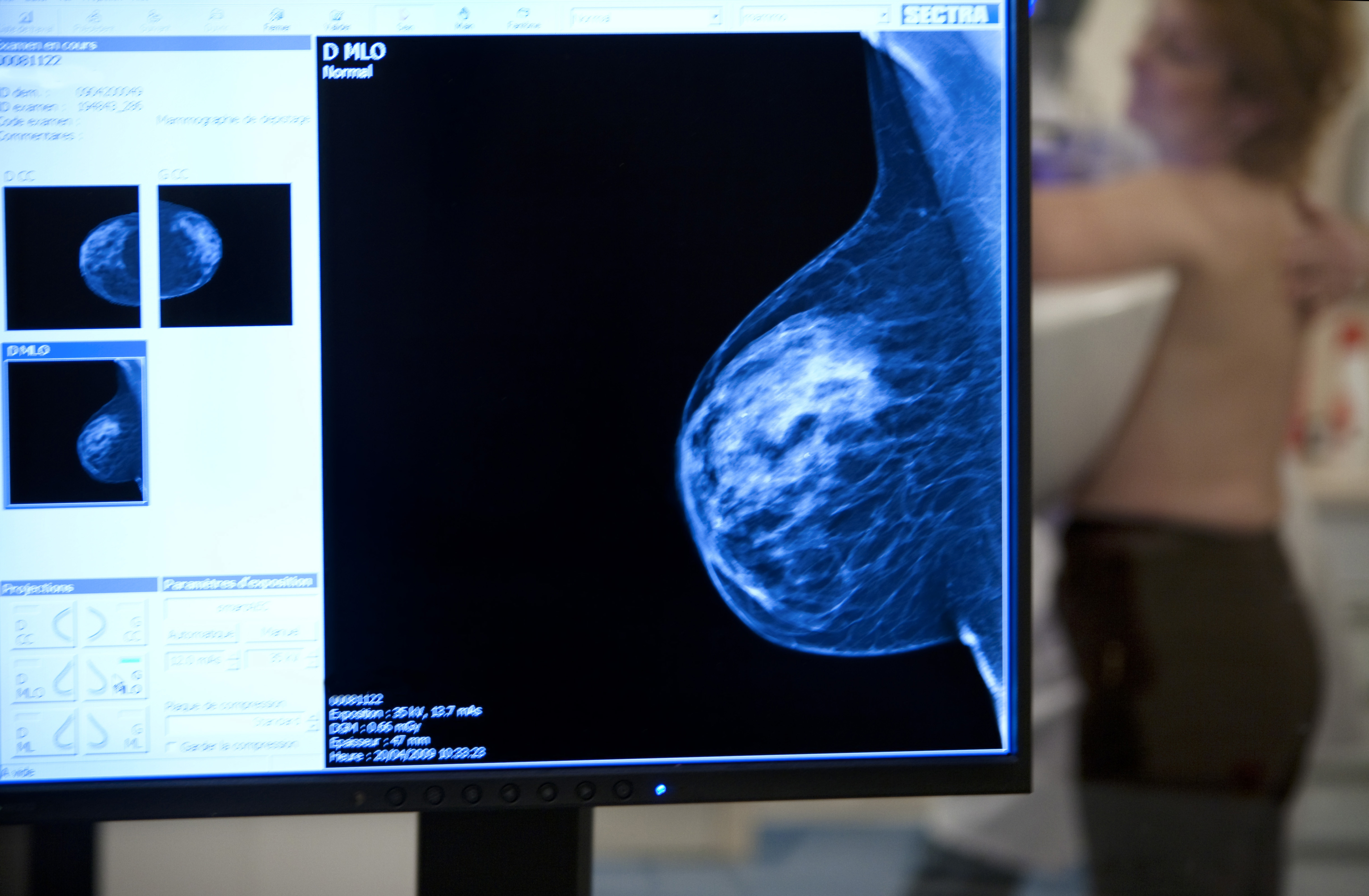 cancer more aggressive after chemo definition of papilloma in medical terminology