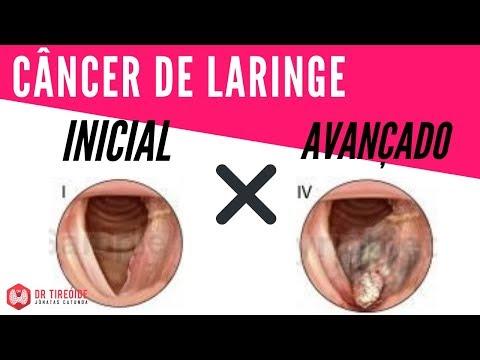 cancer na laringe causas