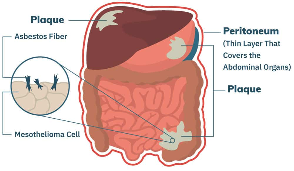 cancer of peritoneal carcinomatosis