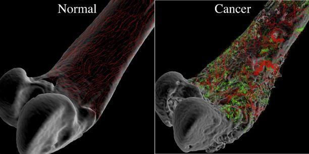 hpv esofago sintomi cancer laringe pruebas