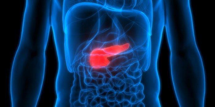 cancer pancreas niveau 4 wart tongue hurts