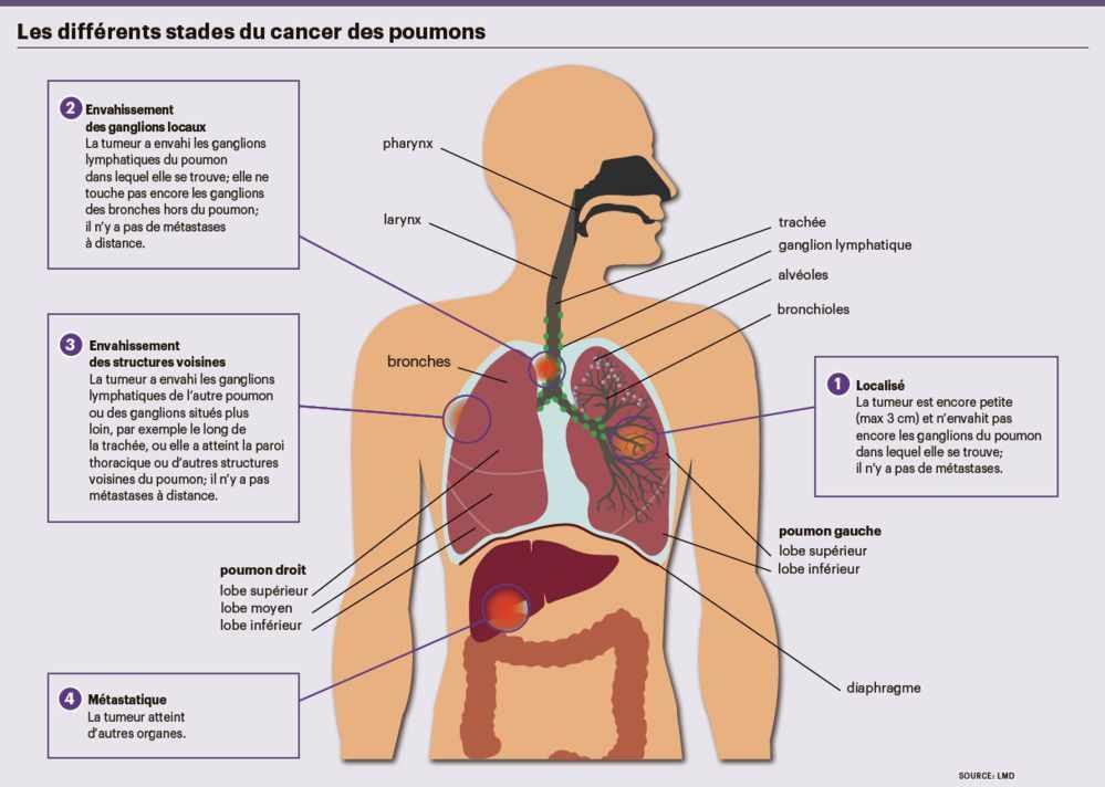 cancer pancreas nodule poumon papiloma humano en una mujer