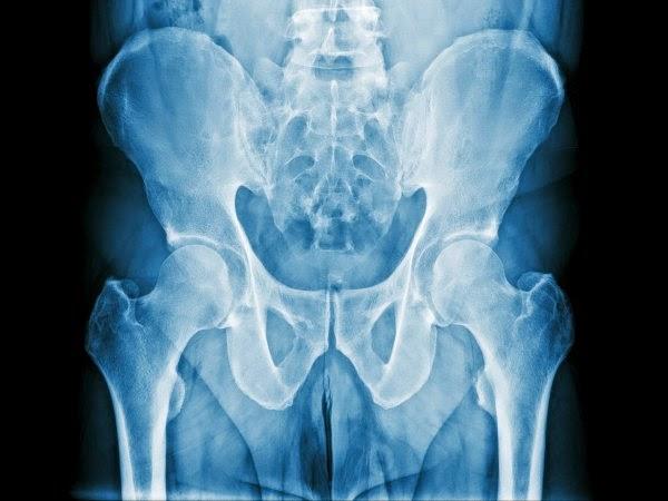 Trage inapoi cu prostata