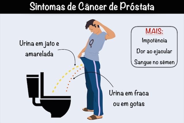 cancer prostata tem cura
