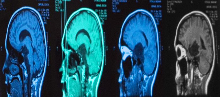 cancer pulmonar cu metastaze cerebrale cancerul ovarian se trateaza