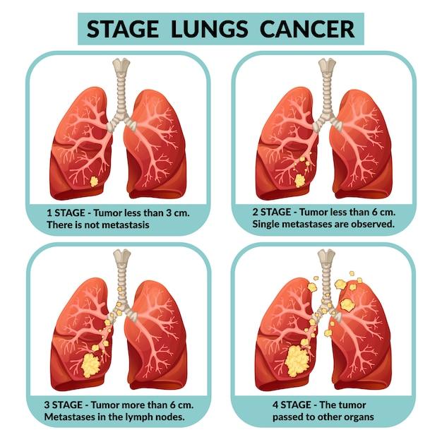 cancer pulmonar etapa 3 hpv cancer ovarian