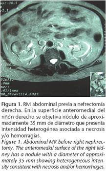 Vene cauzeaza rinichi